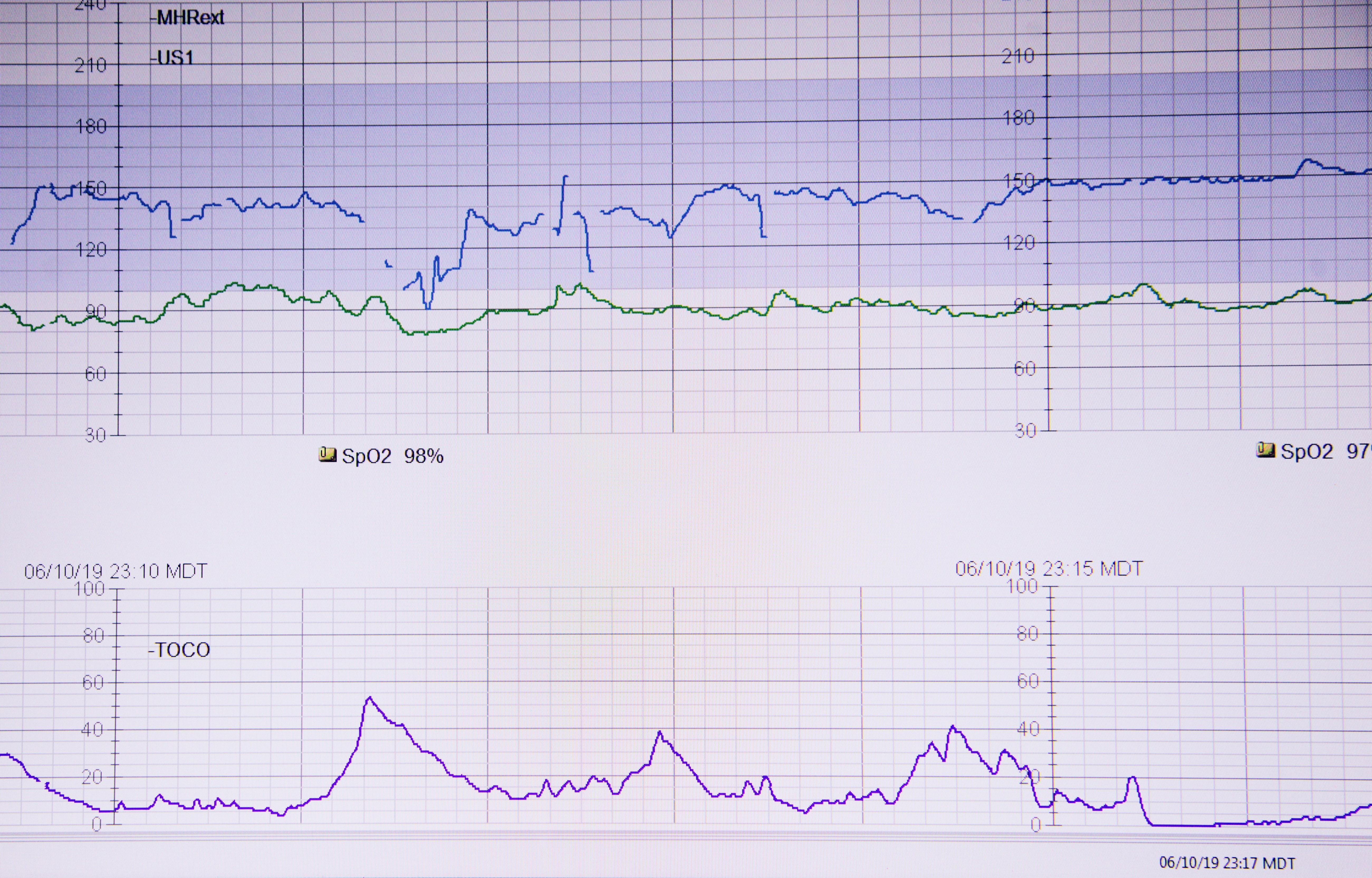 Monitor fetal electrónico
